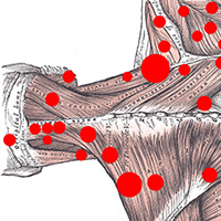 NMT for Trigger Points