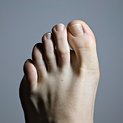 Unraveling the Mystery of Foot Pain